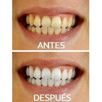 Blanqueamiento dental  Limpieza dental con ultrasonido = 150 soles   cuadra 15 av arequipa