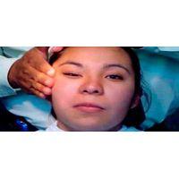 Terapia física en parálisis facial  a domicilio